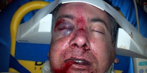 Erik's injuries while serious could have been worse. Oakley M-Frames saved his right eye. (Image from Oakley.com)