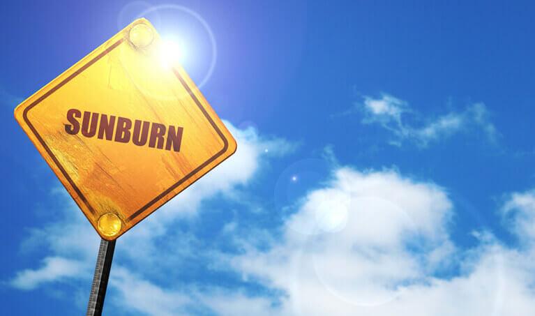 Sunburn Featured