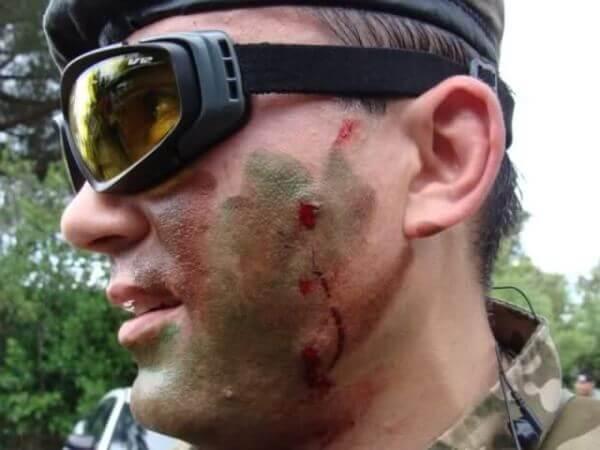 Airsoft Skin Injuries