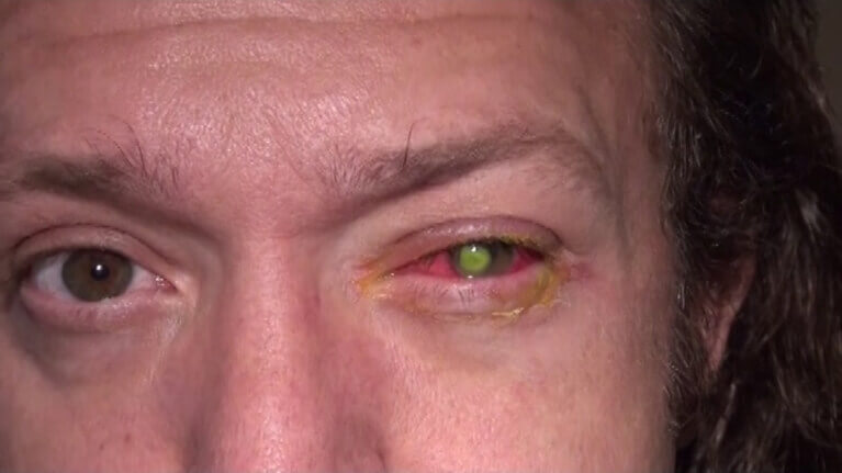 eye infection from decorative contact lenses