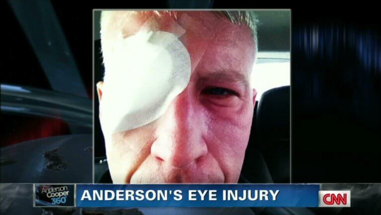 anderson cooper sunburned eyes