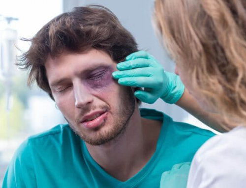 Eye Injuries Can Occur at Any Time and in Any Place