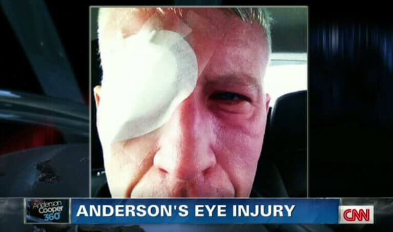 Anderson Cooper Eye Injury